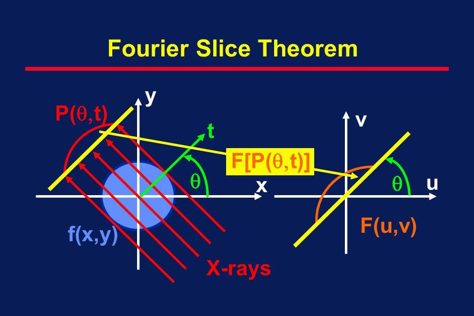 Fourier Slice Theorem y P(t) v t F[P(t)]   u x F(u,v) f(x,y)